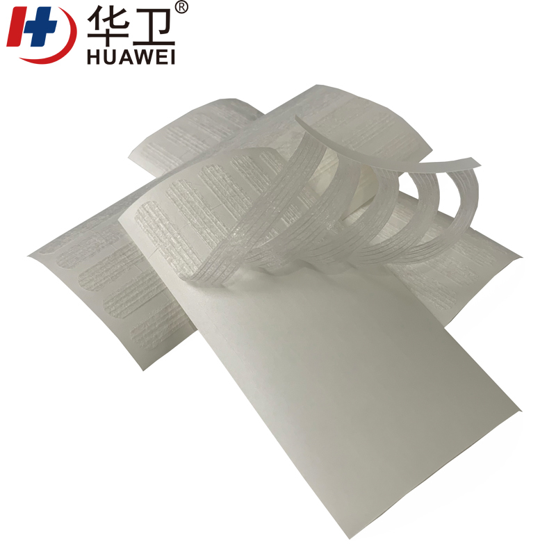Wound Skin Closure Strip Surgical Tape Wound Closure