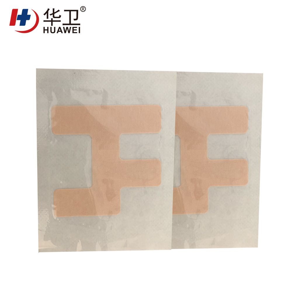 Nasal catheter fixation patch